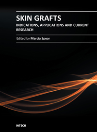 Skin Grafts - Indications, Applications and Current Research