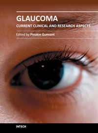 Glaucoma - Current Clinical and Research Aspects