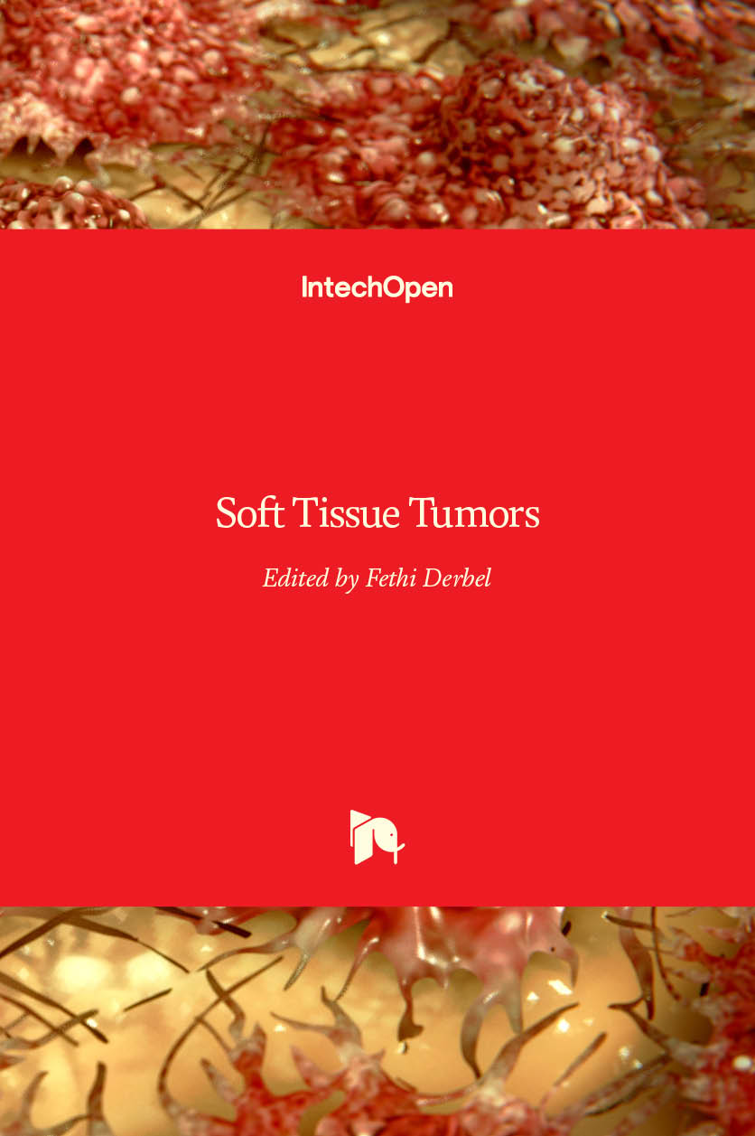 soft tissue tumors