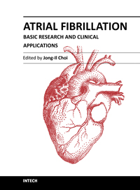 atrial fibrillation symptoms