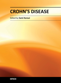 symptoms of crohns disease