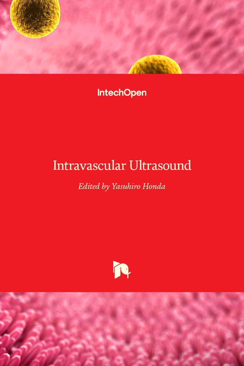 Intravascular Ultrasound