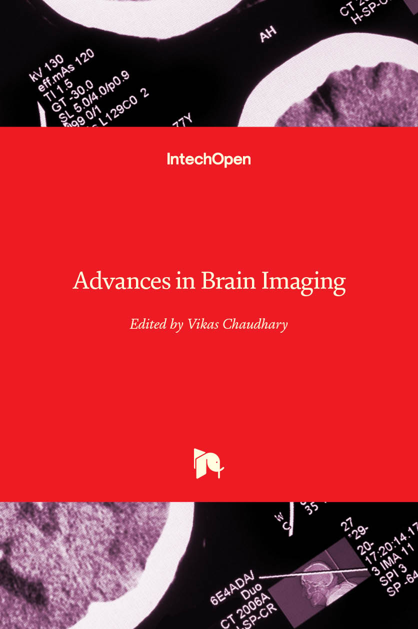 Advances in Brain Imaging