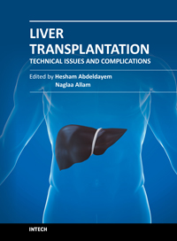 Liver Transplantation - Technical Issues and Complications