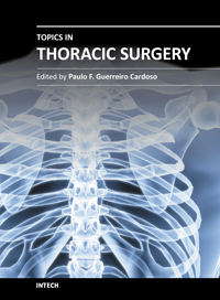 what is thoracic surgery