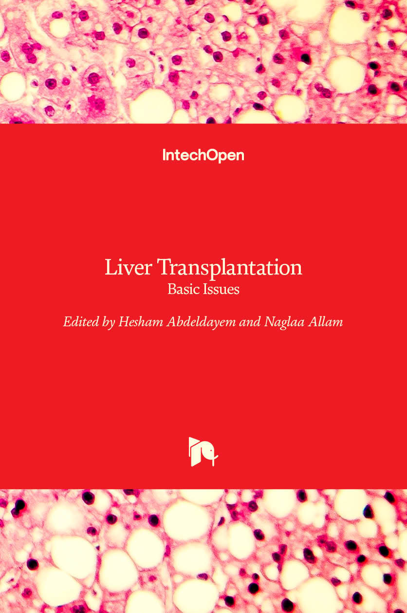 Liver Transplantation - Basic Issues