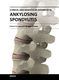 Clinical and Molecular Advances in Ankylosing Spondylitis