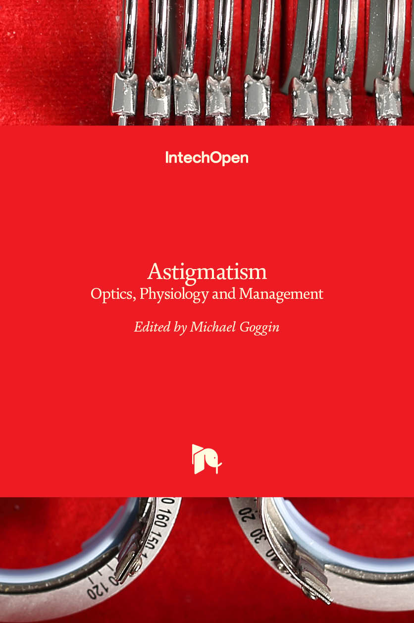 Astigmatism - Optics, Physiology and Management