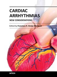Cardiac Arrhythmias - New Considerations