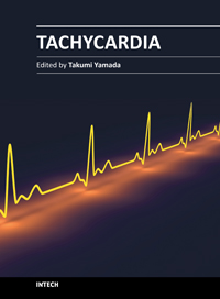 tachycardia causes