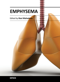 symptoms of emphysema