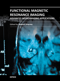 Functional Magnetic Resonance Imaging - Advanced Neuroimaging Applications