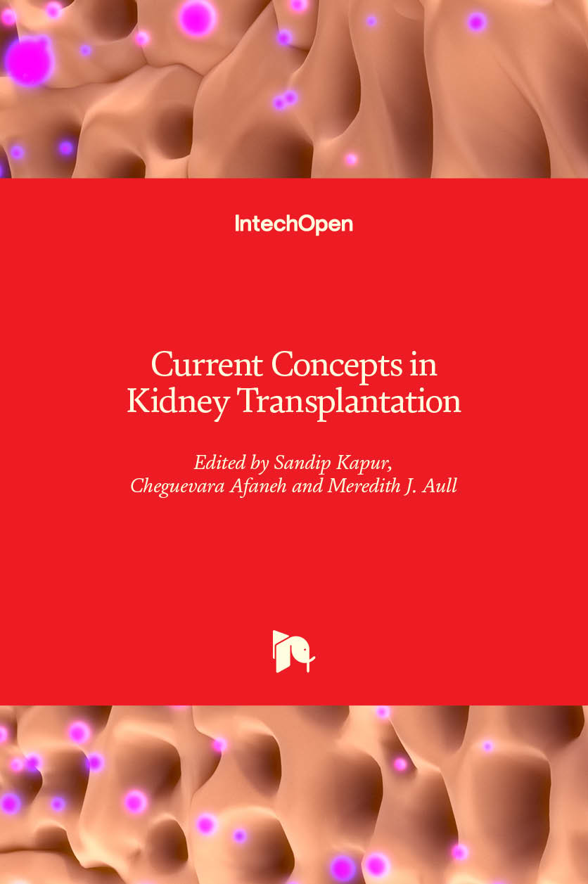 Current Concepts in Kidney Transplantation