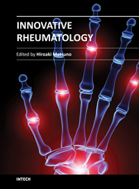 Treatment for Rheumatoid Arthritis