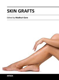Logo for Skin Grafts