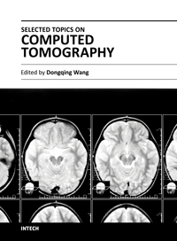 Selected Topics on Computed Tomography