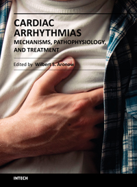 Cardiac Arrhythmias - Mechanisms, Pathophysiology, and Treatment
