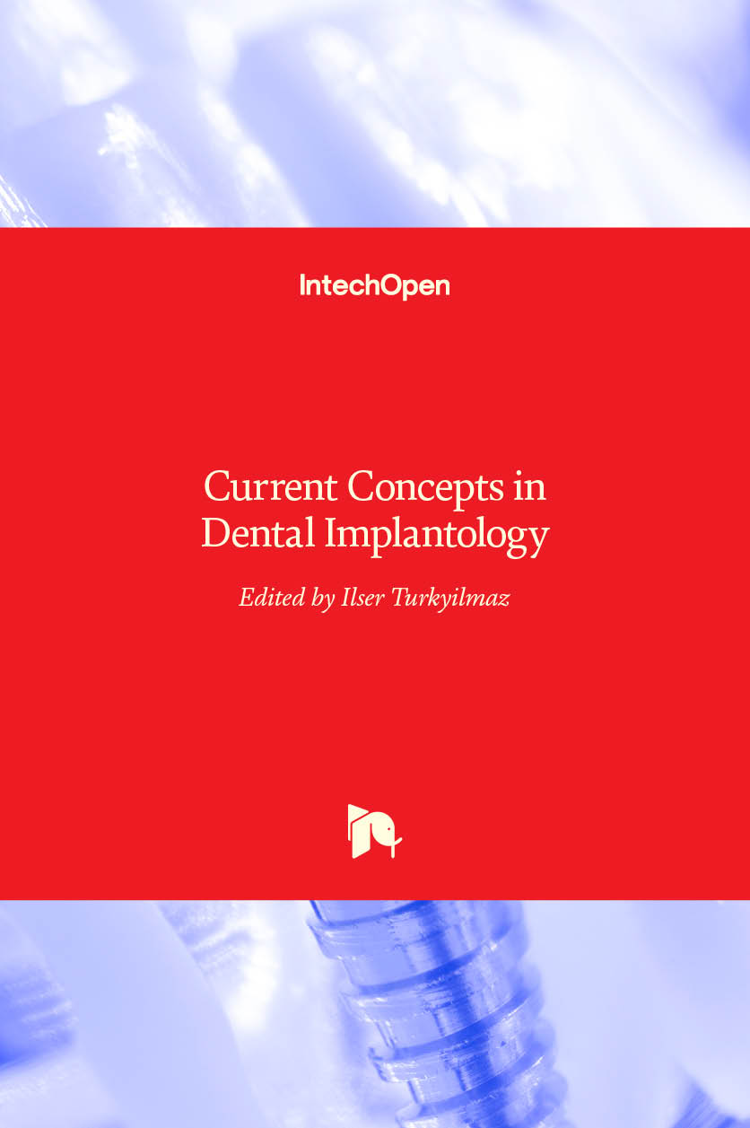 Current Concepts in Dental Implantology