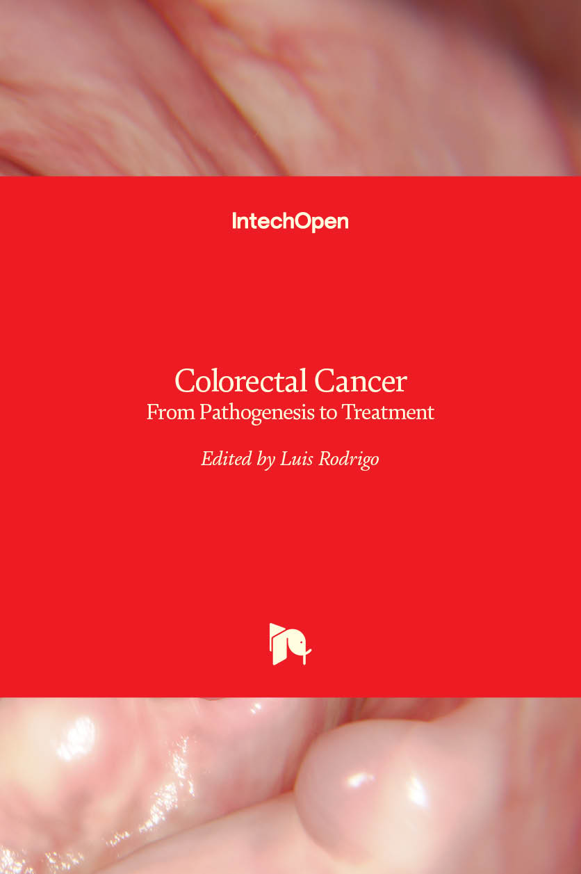 Colorectal Cancer - From Pathogenesis to Treatment