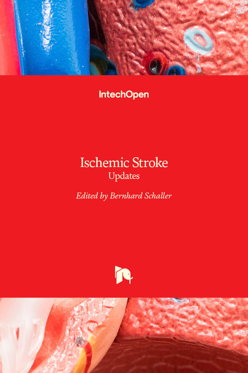 Ischemic Stroke - Updates
