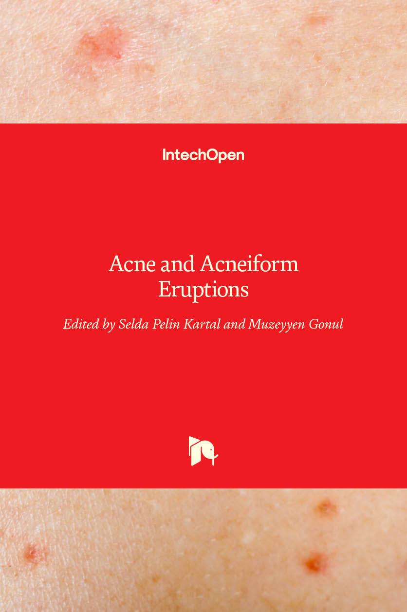 Acne and Acneiform Eruptions