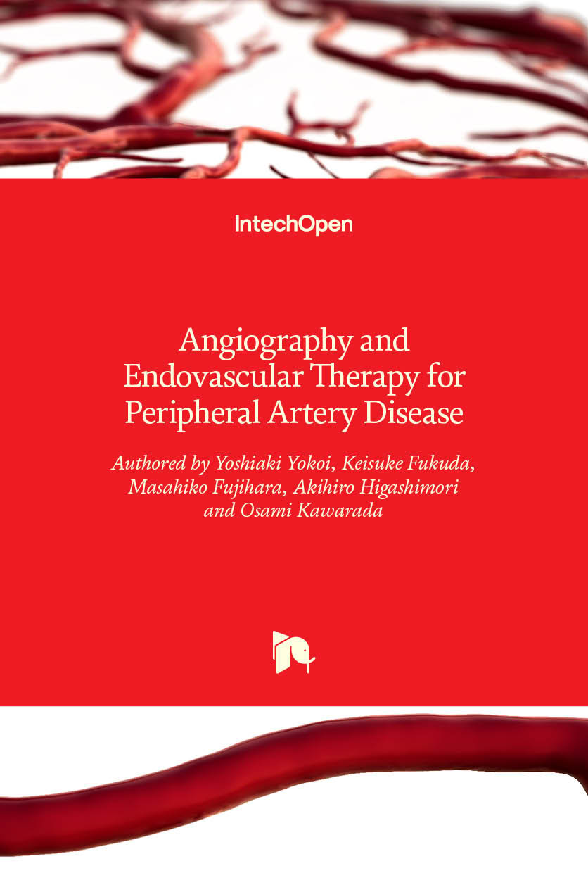Angiography and Endovascular Therapy for Peripheral Artery Disease