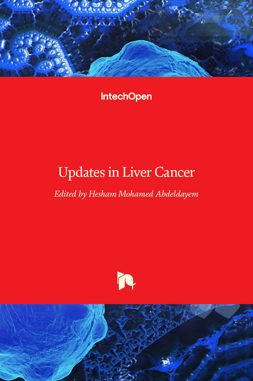 Updates in Liver Cancer