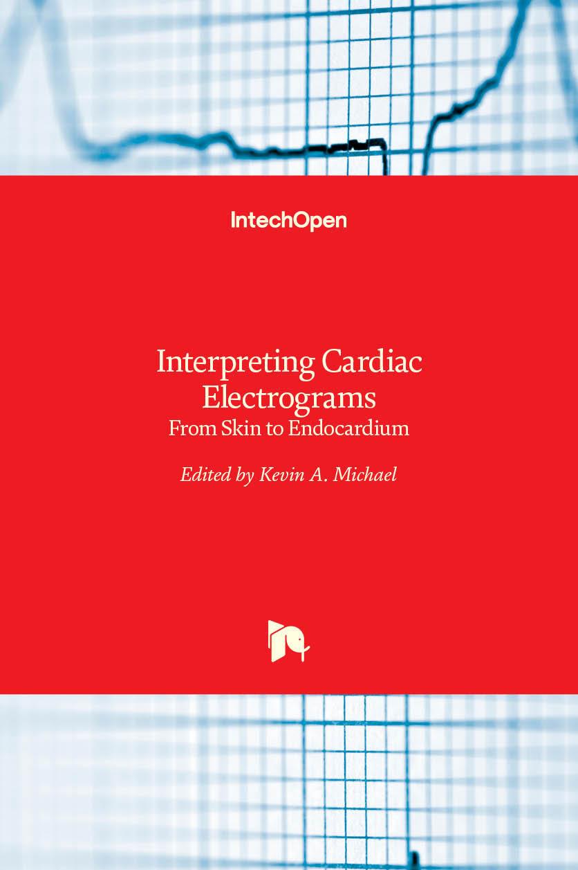 Interpreting Cardiac Electrograms - From Skin to Endocardium