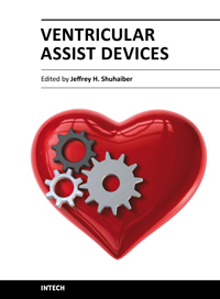 Ventricular Assist Devices