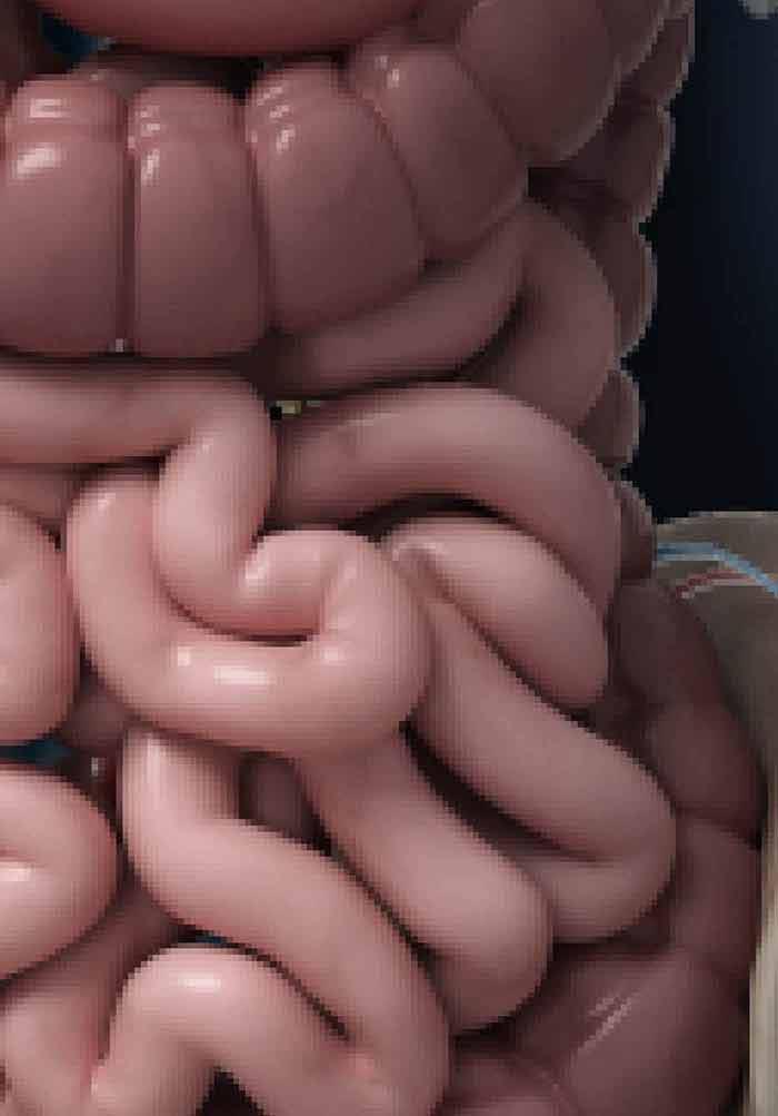 Therapeutic Gastrointestinal Endoscopy | IntechOpen