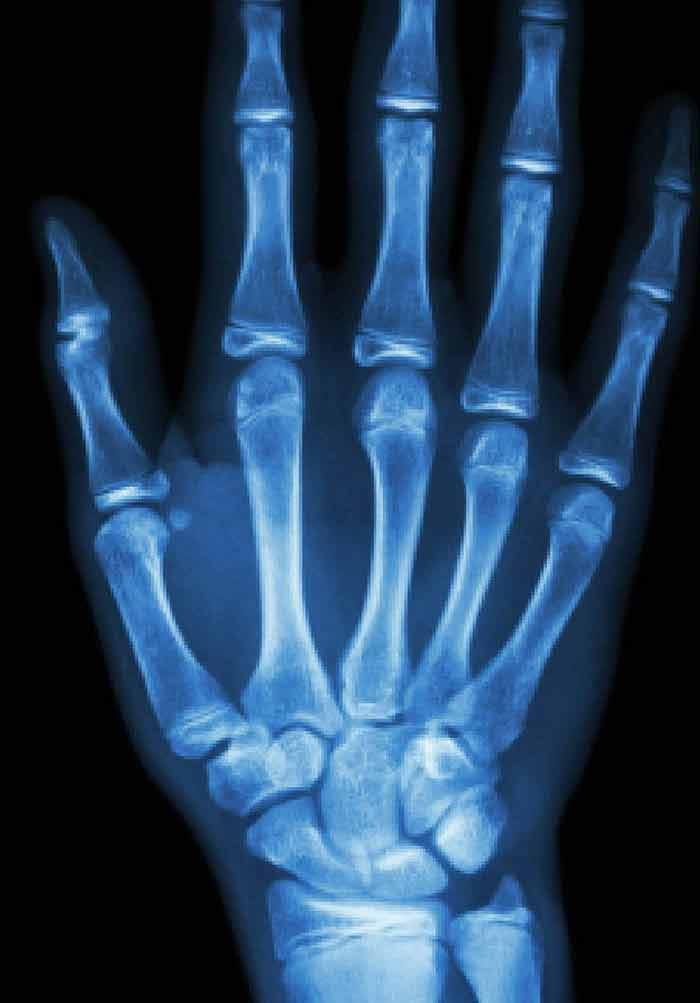 osteoarthritis diagnosis treatment and surgery intechopen