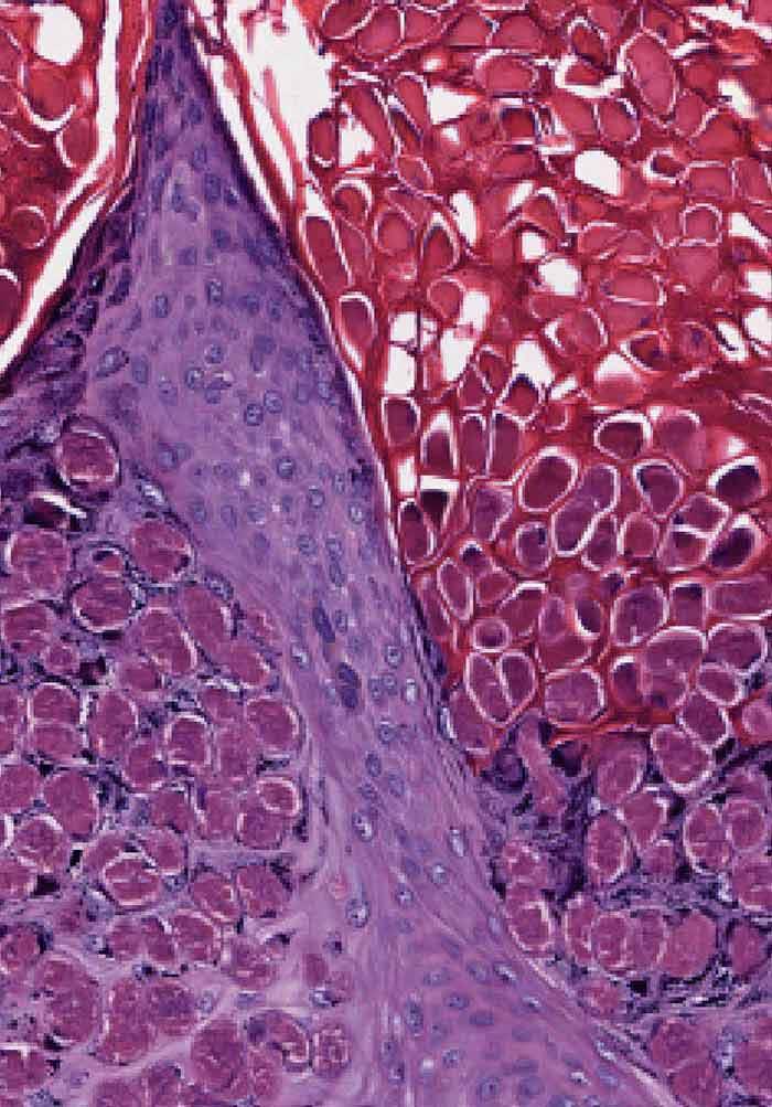 Molecular Histopathology | IntechOpen