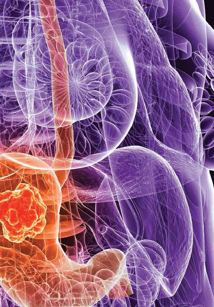 gastric cancer johns hopkins