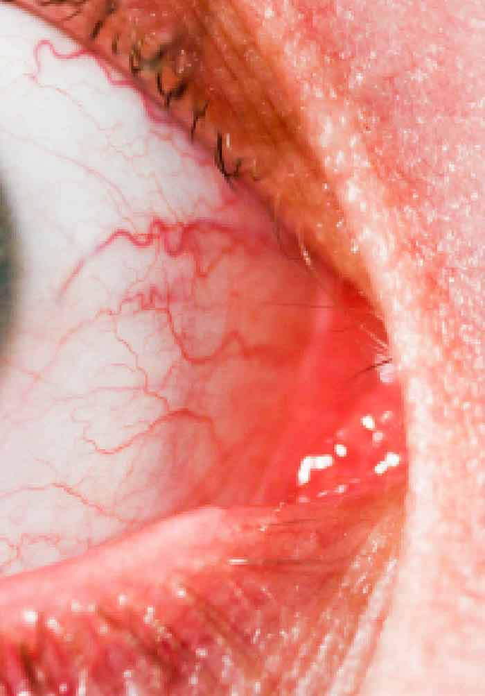 Infective Conjunctivitis – Its Pathogenesis, Management and