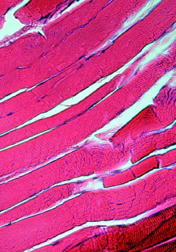 The Treatment of Muscle Hematomas   IntechOpen