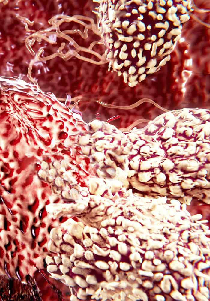 Ovarian Cancer Research In The Post Genomic Era Challenges And Opportunities Intechopen