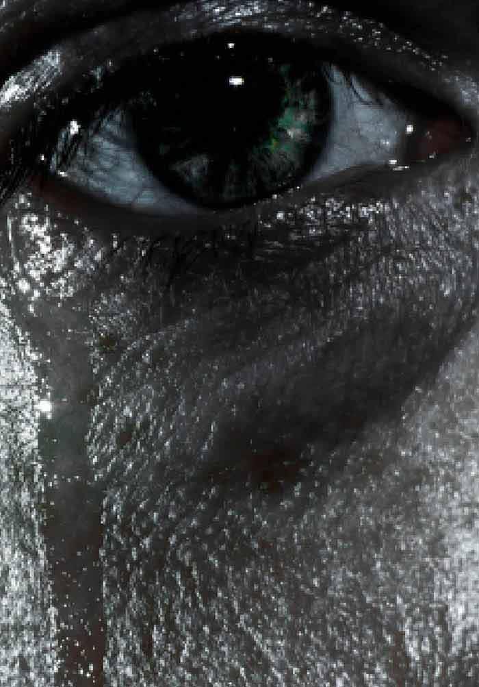 Ocular Parasitic Infections – An Overview | IntechOpen