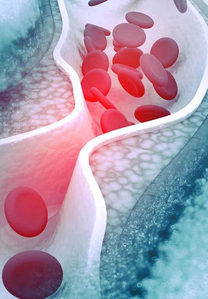 Natural Cholesterol Busters