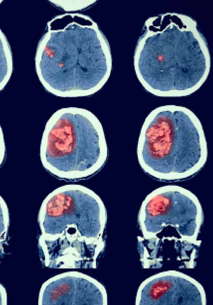 Current Management Of Brain Metastases Overview And Teaching Cases Intechopen