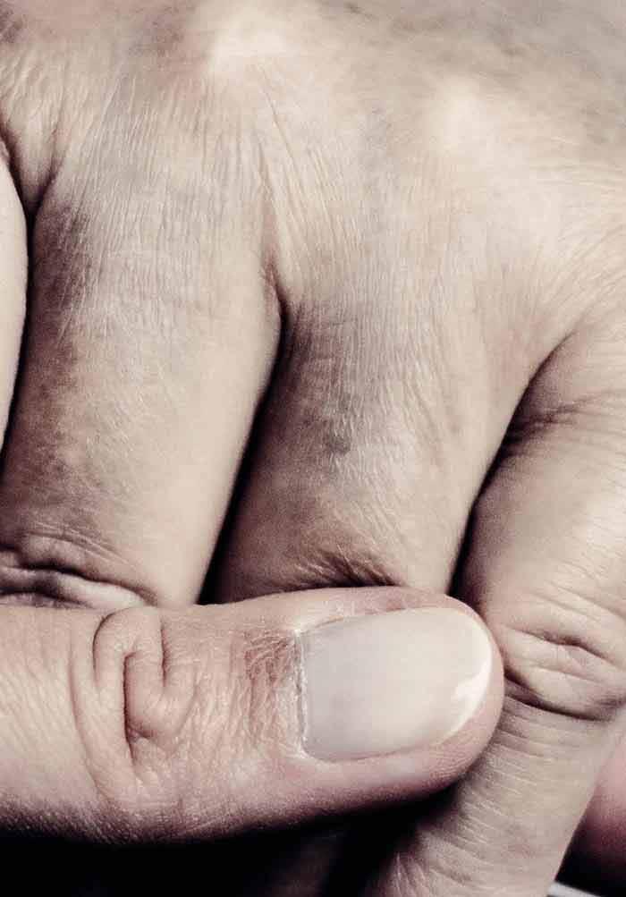 Overburden in Alzheimer's Patient Caregivers | IntechOpen