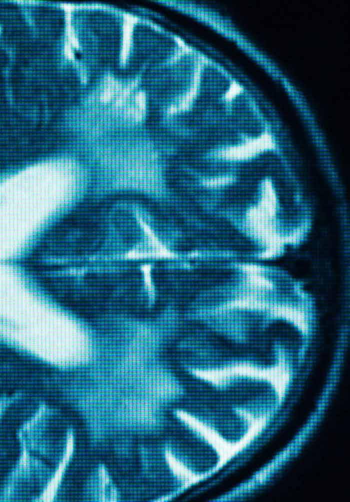 mri medical image denoising by fundamental filters