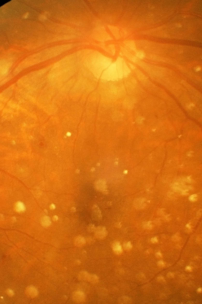 diabetes retinitis