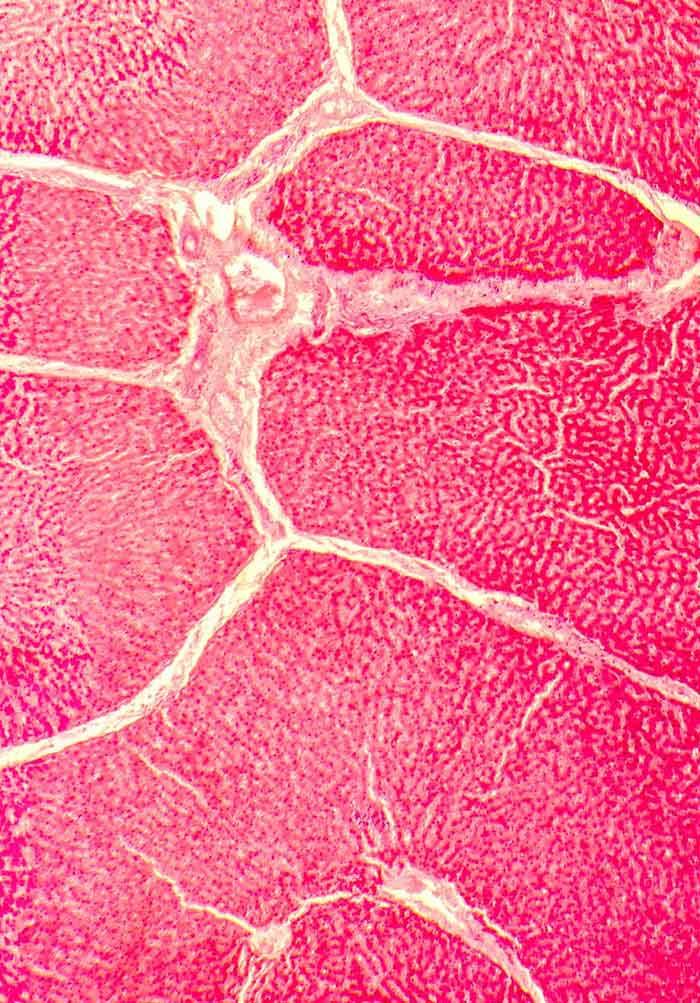 Acute Kidney Injury In Cirrhosis Intechopen
