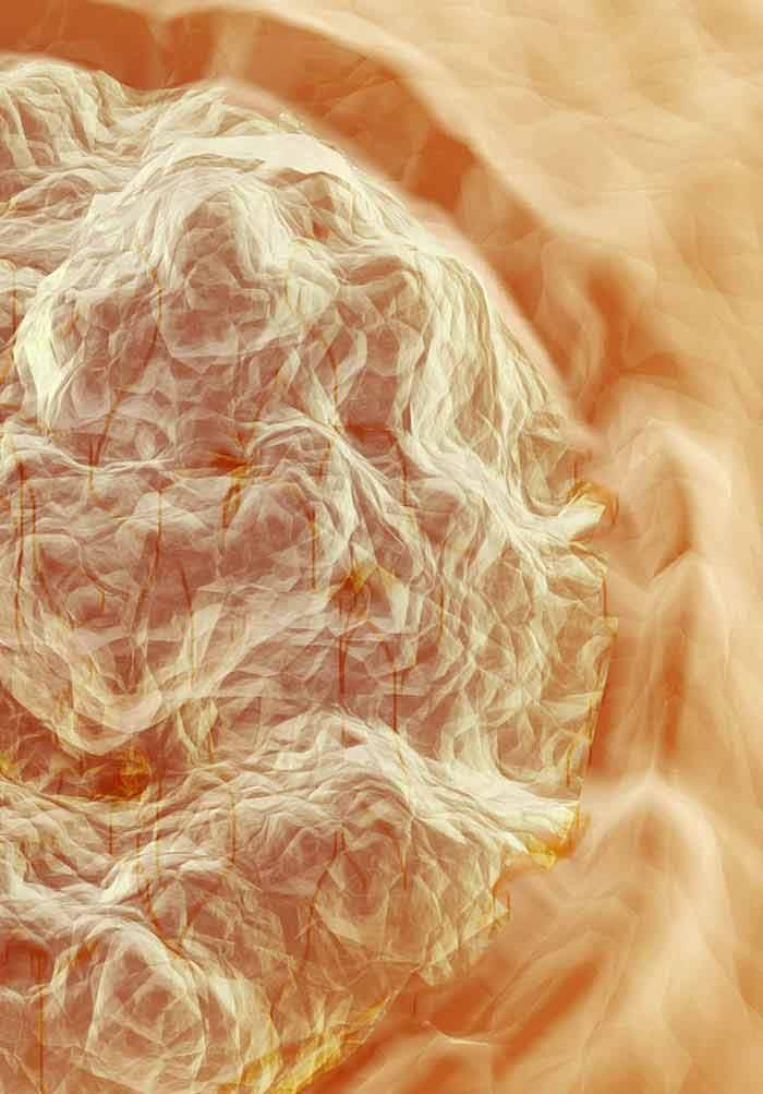 Human Papillomavirus and Cervical Cancer | IntechOpen