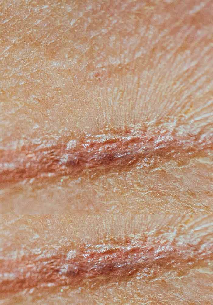 Keloids and Hypertrophic Scars Can Now Be Treated Completely by
