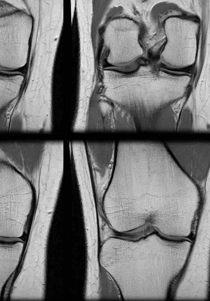Nusurface Meniscus Implant Canada