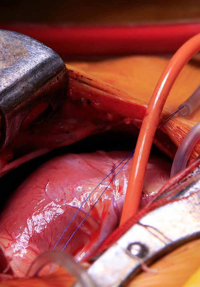 Heart Transplantation Procedure