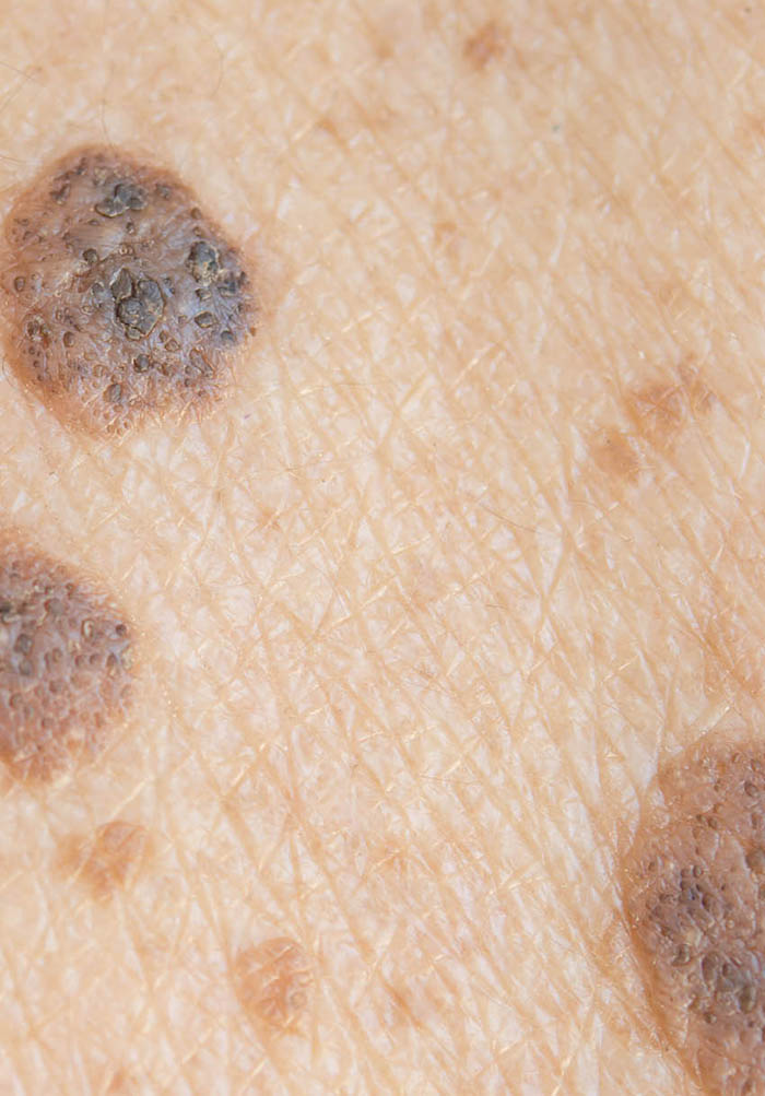 Skin Cancers Risk Factors Prevention And Therapy Intechopen